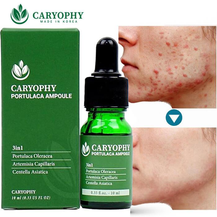 Kết quả hình ảnh cho serum caryophy